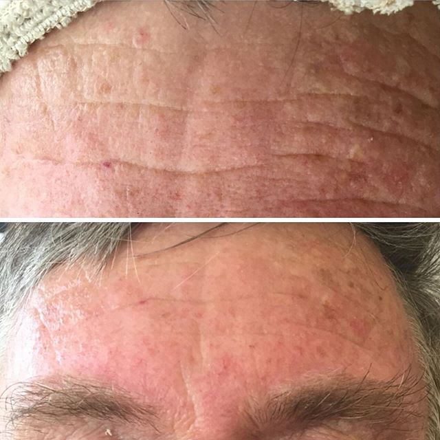Mature Skin before & after treatments