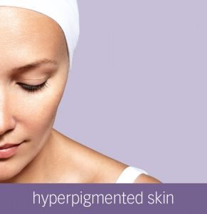 Hyperpigmentation | Pigmentation Skin Issues