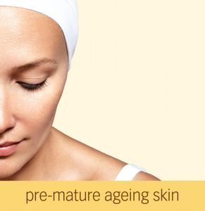 Pre-mature Aging Skin Issues at Beauty Lies within Fendalton Christchurch