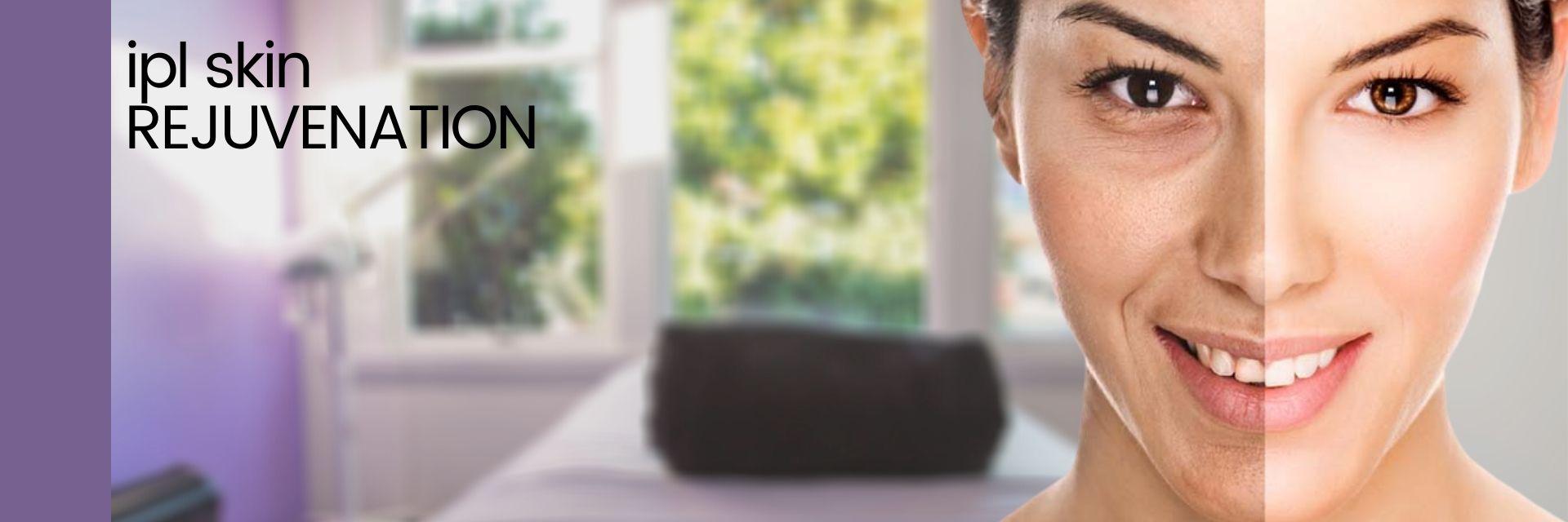 IPL Skin Rejuvenation Christchurch Treatment